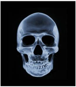 Gimp animation gimp animated gif tutorial x ray scanner tutorial start the project ccuart Image collections